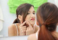 bad-habits-cause-acne